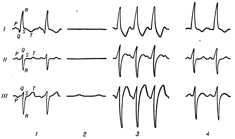 Способы выполнения кардиоплегии, история создания растворов для остановки сердца