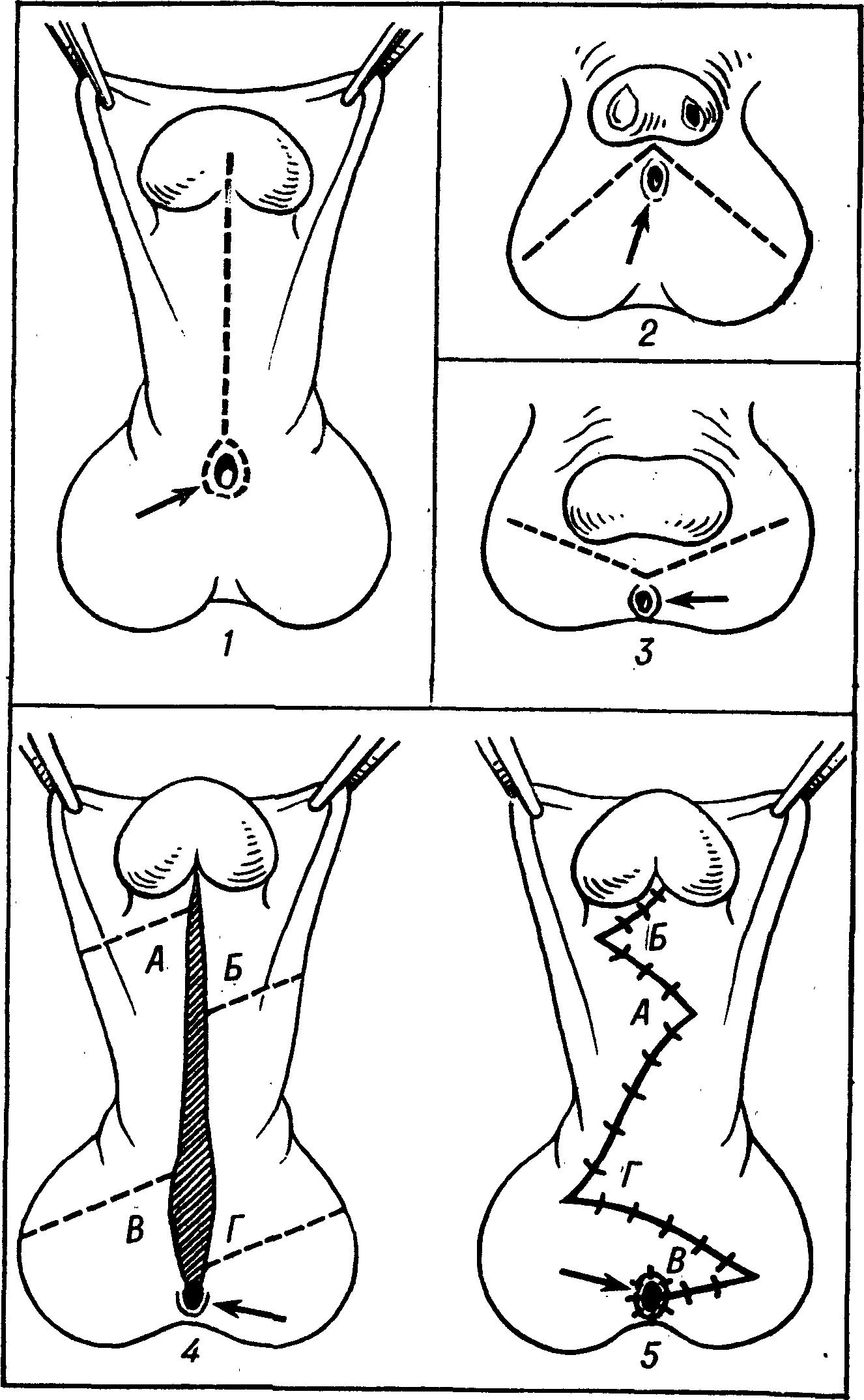 Рис. 1. Схема операции выпрямления полового члена при гипоспадии: 1—3 — варианты кожных разрезов при различных формах гипоспадии; 4 — линии разрезов кожи для выкраивания треугольных лоскутов — А—Г (в середине рисунка заштрихована область иссеченного рубца); 5 — операция завершена, лоскуты перемещены. Стрелками указано отверстие уретры, пунктиром — линии разрезов.
