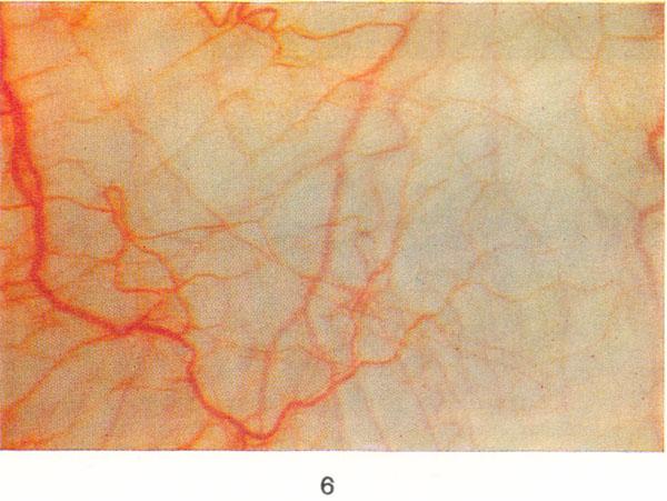 Рис. 6. Сосуды конъюнктивы глаза при биомикроскопии в норме; X 25.