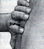 Рис. 16. Появление капель, свидетельствующее о том, что конец иглы находится в субарахноидальном пространстве