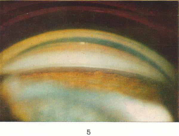 Рис. 5. Угол передней камеры глаза при гониоскопии в норме (сверху вниз): роговица глаза, корнеосклеральная трабекула, корень радужки; Х 16.