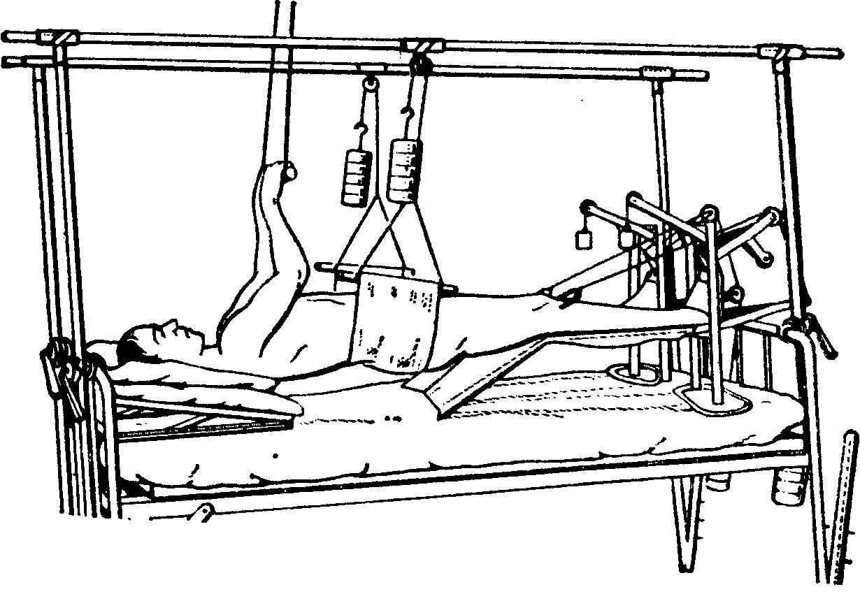 Изображение - Крестцово подвздошный сустав движения Articulatio_sacroiliaca_6
