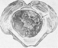 Рис. 5. Фронтальный срез головного мозга на уровне моста. Эпендимома четвертого желудочка, заполняющая его полость (указана стрелкой).
