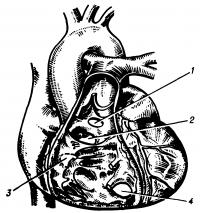 Рис. 9. Схематическое изображение локализации дефектов межжелудочковой перегородки (вид со стороны правого желудочка); локализация: 1 — надгребневая, 2 — передняя подгребневая, 3 — задняя подгребневая, 4 — мышечная.