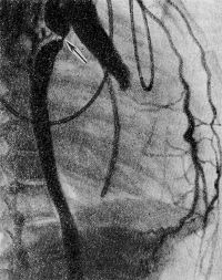 Рис. 2. Аортограмма больного с коарктацией аорты (правая косая проекция): полный перерыв тени контрастированной аорты в области перешейка (указано стрелкой).