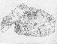 Рис. 3. Макропрепарат желудка и начальной части двенадцатиперстной кишки больного с ожоговым истощением через 79 суток после ожога: 1 — множественные крупные эрозии и острые язвы слизистой оболочки желудка; 2 — острая язва парапилорического отдела двенадцатиперстной кишки.