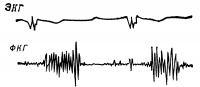 Рис. 8. Фонокардиограмма (с верхушки сердца) больного с травматической митральной недостаточностью в результате разрыва задней папиллярной мышцы: I тон отсутствует, голосистолический шум, нарастающий к II тону.