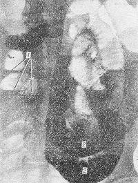 Рис. 9. Прямая рентгенограмма брюшной полости с контрастированием кишечника при спаечной тонкокишечной непроходимости: в тонкой кишке скопления газа и уровни жидкости (1); бариевая взвесь заполняет расширенные нижние отделы петель тощей кишки (2), в верхних отделах — скопления газа и горизонтальные уровни жидкости