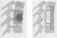 Рис. 29. Схематическое изображение резекции тел позвонков при туберкулезном спондилите с последующим передним спондилодезом: а — пораженный сегмент, состоящий из двух тел позвонков (пунктирной линией обозначена граница резекции); б — трансплантат внедрен в послеоперационный дефект, блокирует пораженный участок позвоночника (окантован сплошной линией).