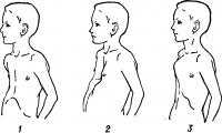 Рис. 7. Внешний вид детей с врожденными деформациями грудной клетки: 1 — плоская; 2 — воронкообразная; 3 — килевидная.