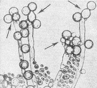 Рис. 1. Хламидоспоры с двуконтурной оболочкой и зернистым содержимым на концах псевдомицелия (указаны стрелками).