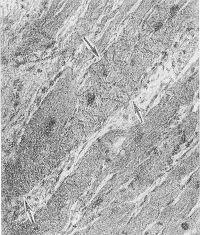 Рис. 2. Микропрепарат миокарда: стрелками указаны мышечные контрактуры; окраска гематоксилин-эозином; X 200.