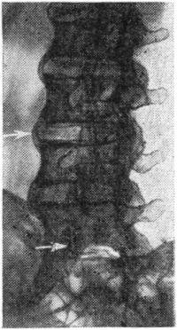 Рис. 5. Болезнь Бехтерева, III стадия. Типичные «скобки» в поясничном отделе позвоночника (верхняя стрелка). Часть межпозвонковых суставов анкилозирована, суставы сочленения позвонков LV и SI (нижняя стрелка) не спаяны (рентгенограмма, косая проекция).