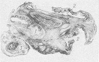 Рис. 5. Гистотопограмма яичника при абсцессе в области кисты желтого тела (1): полости абсцессов (2) имеют характерные фестончатые очертания; маточная труба (3) с утолщенными склерозированными стенками плотно спаяна с яичником (окраска гематоксилин-эозином).