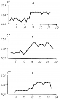 Рис. 4. Графики вариантов овуляторного подъема кривой нормальной базальной температуры в течение менструального цикла: а — быстрый, б — медленный, в — ступенеобразный. По оси абсцисс обозначены дни цикла.