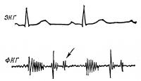Рис. 6. Фонокардиограмма (с верхушки сердца) больного с недостаточностью митрального клапана: амплитуда I тона снижена, убывающий систолический шум, отчетливый III тон (указан стрелкой).