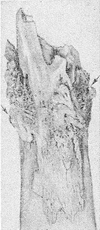 Рис. 4. Вид отломка бедренной кости, пораженной остеомиелитом: видны костные разрастания по краям отломка (указаны стрелками).