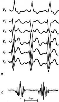 Рис. 17. Электрокардиограмма (а) и фонокардиограмма (б) при стенозе легочной артерии: а — в грудных отведениях V1—V6 признаки гипертрофии правого желудочка; б — систолический шум ромбовидной формы.