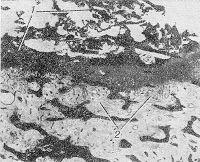 Рис. 2. Микропрепарат губчатой кости с секвестром (1) на границе с зоной роста грануляций (2), окраска гематоксилин-эозином; х 80.