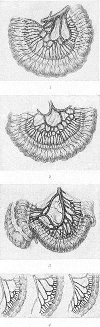 Рис. 7. Схематическое изображение артериальных аркад: 1—3 — тонкой кишки (1 — артерии начального отдела тощей кишки; 2 — артерии среднего отдела тонкой кишки; 3 — артерии конечного отдела подвздошной кишки); 4 — варианты ветвления сигмовидных артерий.