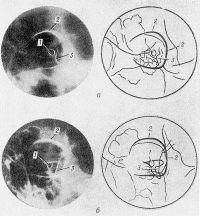 Рис. 3. Рентгенограммы и соответствующие им схемы левого зрительного канала по Резе (а) и по Голвину (б): 1— зрительный канал; 2 — контур орбиты; 3 — верхняя глазничная щель.