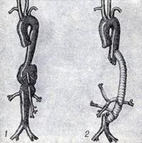 Рис. 14. Резекция аневризмы торако-абдоминальной аорты: 1 — аорта с аневризмой; 2 — аневризма удалена, дефект аорты и ее ветвей замещен протезом