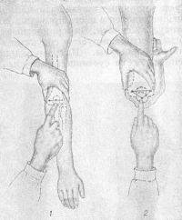 Рис. 5. Методика определения линии (1) и треугольника (2) Гютера в локтевом суставе в норме (пунктиром обозначены проекции костей, образующих сустав): 1 — при разгибании сустава локтевой отросток и оба надмыщелка плечевой кости образуют прямую линию; локтевой отросток лежит на одинаковом расстоянии от надмыщелков; 2 — при сгибании сустава локтевой отросток и оба надмыщелка плечевой кости образуют равнобедренный треугольник.