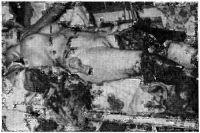 Рис. 3. Пострадавшая с травматической ампутацией нижних конечностей и правой руки в результате транспортной травмы.
