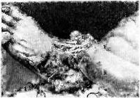 Рис. 2. Левая стопа и дистальная часть голени при размозженной ране стопы с вывихом.