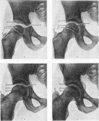 Рис. 4. Рентгенограммы тазобедренного сустава в норме у детей разного возраста: а — в возрасте 3,5 лет; б — в возрасте 7 лет; в — в возрасте 11 лет; г — в возрасте 15 лет; 1 — Y-образный хрящ; 2 ядро окостенения большого вертела; 3 — эпифизарный хрящ; 4 — ядро окостенения головки бедренной кости; 5 — крыша вертлужной впадины.