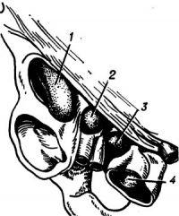 Рис. 15. Схема некоторых разновидностей бедренных грыж: 1 —мышечно-лакунарная; 2—предсосудистая; 3— сосудисто-лакунарная; 4— гребешковая.