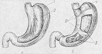 Рис. 14. Схематическое изображение слоев мышечной оболочки желудка: а — наружный и средний; б — наружный, средний и внутренний; 1 — продольные волокна наружного слоя; 2 — кольцевые волокна среднего слоя; 3 — косые волокна внутреннего слоя.