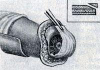 Рис. 3. Фасцио-пластический метод ампутации голени. Отпиливание переднего края большеберцовой кости
