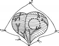 Рис. 24. Схематическое изображение циркулярной резекции полушария мозжечка в области нижней полулунной дольки (границы резекции обозначены пунктиром, обнаженная поверхность мозжечка показана штриховкой).