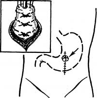 Рис. 4. Схема гастростомии по Топроверу: на вытянутый конус желудка накладывается три кисетных шва, затем в разрез вершины конуса вводится резиновая трубка (слева вверху); после затягивания кисетных швов трубка извлекается, края вскрытой верхушки конуса подшиваются к брюшной стенке, образуя губовидный свищ (указано стрелкой), в который при кормлении вставляется резиновая трубка.