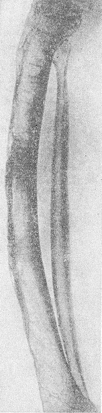 Рис. 6. Рентгенограмма голени больного врожденным сифилисом (боковая проекция): видно искривление большеберцовой кости вперед (саблевидная голень).