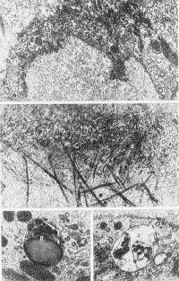 Рис. 6. Электронограмма элементов стенки лимфатических капилляров и окружающей их соединительной ткани: а — эндотелиоцит (стрелками указаны микропиноцитозные везикулы); х 20 000; б — «якорные» филаменты (1), фиксирующие эндотелиоцит (2) к окружающим его коллагеновым протофибриллам (3); х 50 000; в и г — цитоплазма эндотелиоцитов (1 — лизосома, 2 — остаточное тельце); X 60 000.