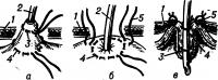 Рис. 2. Схема гастростомия по Кадеру: резиновая трубка вставляется в вытянутый конус желудка (а) и с завязанным верхним кисетным швом инвагинируется в полость желудка (б); проведенными лигатурами гастростома фиксируется к брюшной стенке (в); 1 — брюшная стенка; 2 — резиновая трубка; 3 — верхний кисетный шов; 4 — нижний кисетный шов; 5 — лигатура для фиксации гастростомы.