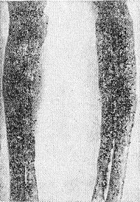 Рис. 4. Боковые рентгенограммы голеней при смешанной форме фиброзно-хрящевой остеодисплазии: кости искривлены, утолщены и имеют резко измененную структуру.