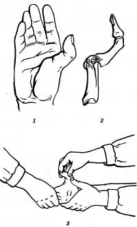 Рис. 6. Схематическое изображение кисти при вывихе I пальца (1), положения костей I пальца при этом вывихе (2) и закрытого вправления вывиха (3).