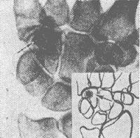 Рис. 7. Рентгенограмма кистевого сустава при остеоид-остеоме крючковидной кости с рентгенонепрозрачным «гнездом» — указано стрелкой; справа внизу — схема.