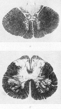 Рис. 1. Микропрепараты поперечных срезов спинного мозга в грудном (а) и крестцовом (6) отделах при спинной сухотке: область дегенерации задних канатиков указана стрелками; окраска по Вейгерту; X 7.