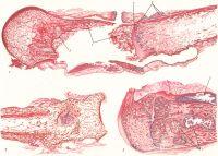 Рис. 1. Макропрепарат диафиза бедренной кости (продольный распил) при остеомиелите после огнестрельного ранения: 1 — секвестрирующийся участок кости; 2 — разрастания грануляционной ткани в зоне демаркации; 1 —комплексы костных балок. Рис. 2. Макропрепарат большеберцовой кости при остеомиелите после огнестрельного ранения: в зоне сросшегося перелома виден гнойник с мелкими секвестрами (один из них указан стрелкой). Рис. 3. Макропрепарат метафиза бедренной кости при гематогенном остеомиелите: 1 — внутрикостные гнойники с секвестрами губчатого вещества; 2 — субпериостальный гнойник.