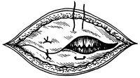 Рис. 20. Схема операции пупочной грыжи или грыжи белой линии живота по Мейо (удвоение апоневроза с ушиванием его П-образными швами): под апоневрозом видны ушитые листки брюшины.