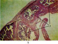 Рис. 5. Микропрепарат маточной трубы в норме: общий вид различных отделов трубы (1) на поперечном срезе (на различных уровнях); в просвете трубы видны ветвистые складки (2) слизистой оболочки. Окраска гематоксилин-эозином