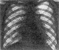Рис. 5. Рентгенограмма грудной клетки больного раком щитовидной железы с метастазами в легкие (прямая проекция): видны множественные мелкоочаговые тени — метастазы рака.