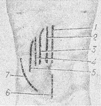 Рис. 1. Схемы разрезов кожи при продольных лапаротомиях: 1—верхний срединный; 2 — парамедианный; 3 — траксректальный; 4 — параректальный; 5 — по полулунной (спигелиевой) линии; 6 — нижний срединный; 7 — боковой трансмускулярный.