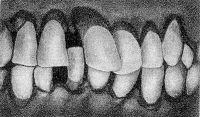 Рис. 3. Внешний вид зубов при пародонтозе: зубы смещены и повернуты по оси, корни их обнажены.