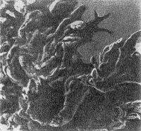 Рис. 1. Электронограмма синовиальной оболочки сустава при ревматоидном артрите, полученная с помощью сканирующего микроскопа: видны ворсинчатые разрастания; X 35 000.