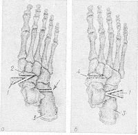 Рис. 5. Схематическое изображение костнопластической операции Пертеса при статическом продольном плоскостопии: а - иссечение клина (1) из нижневнутренней части ладьевидной кости (2) и вертикальная остеотомия (указана стрелкой) пяточной кости (3); б — имплантация костного клина (1) в пяточную кость (5); место иссеченного клина в ладьевидной кости (4).